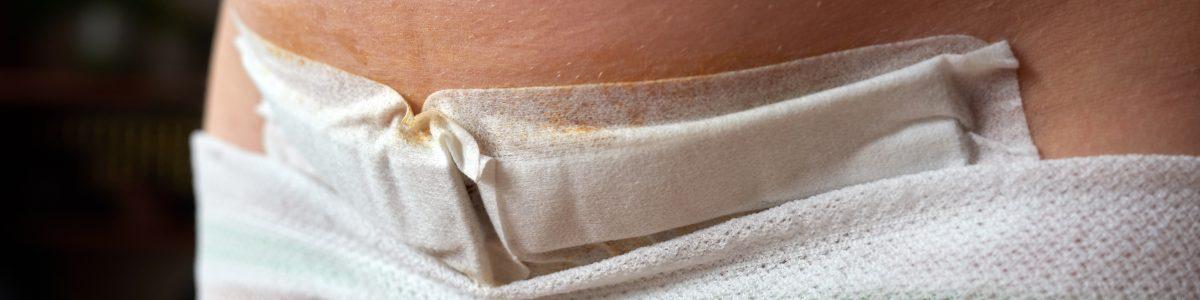 Photo d'une cicatrice de césarienne
